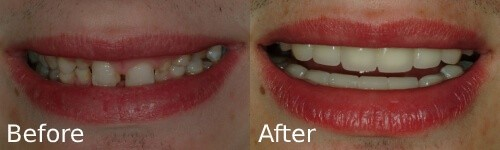 before and after testimonial